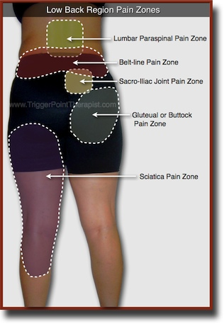 Trigger Point Pain Zones in Low Back Pain Complaints