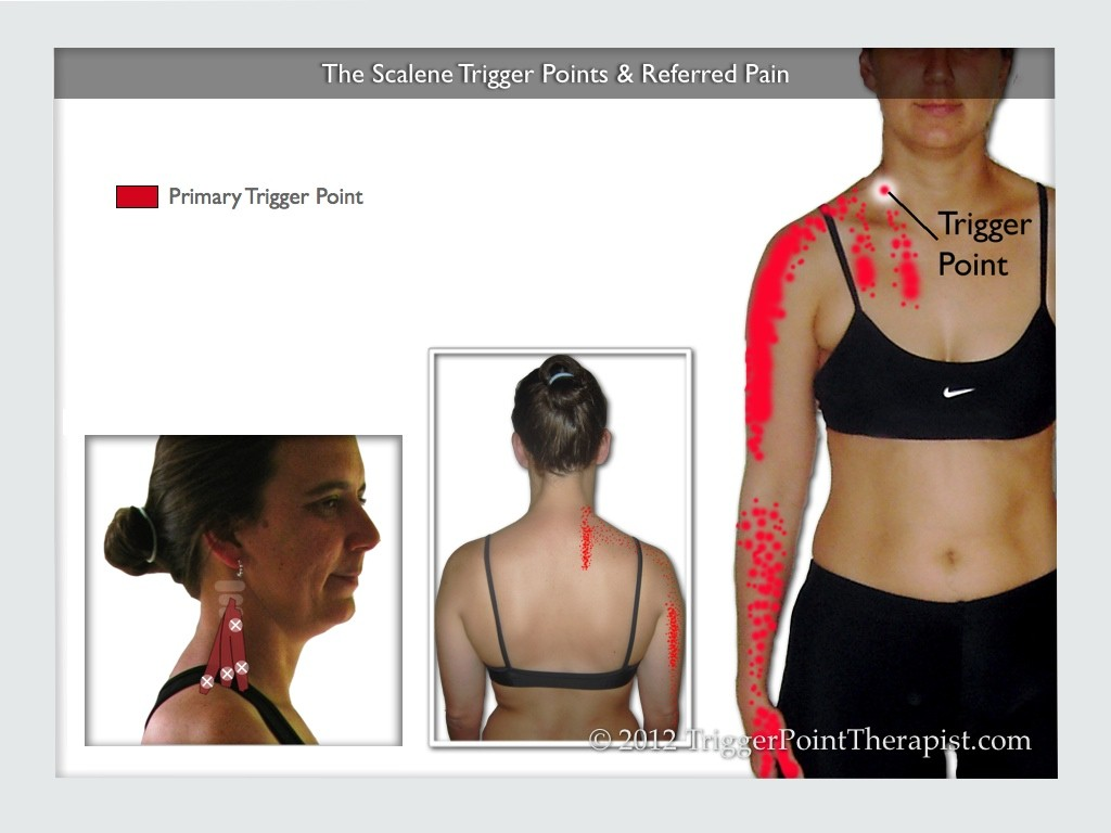 Image of The Scalene Trigger Points & Referred Pain