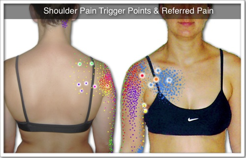 "Image of the common ""shoulder pain trigger points"""