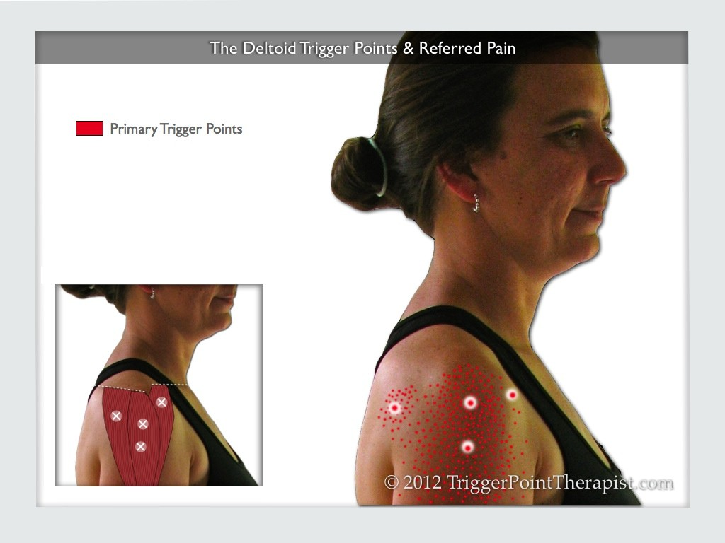 Image of The Deltoid Trigger Points & Referred Pain