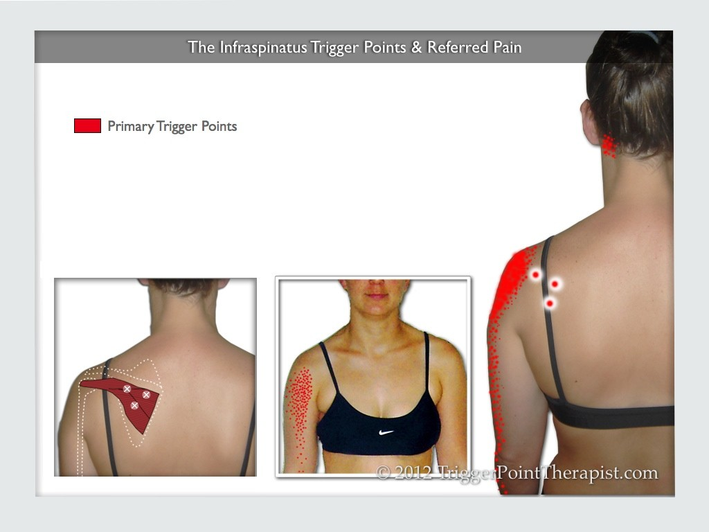 The Infraspinatus Trigger Points & Referred Pain