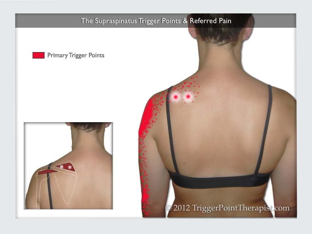 Image of The Supraspinatus Trigger Points & Referred Pain