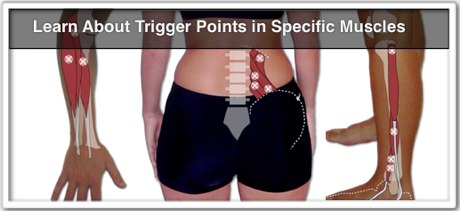 """trigger points in muscles guide"" icon"