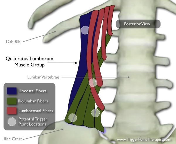"Diagram of the ""Quadtraus Lumborum Muscle Fibers and Trigger Points"""