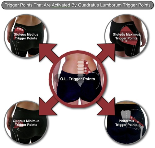 "Diagram of ""Quadratus Lumborum Trigger Point Interactions"""