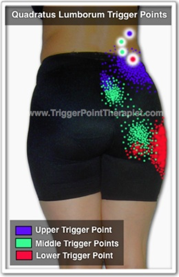 "Picture of ""Quadtratus Lumborum Pain and Trigger Points"""