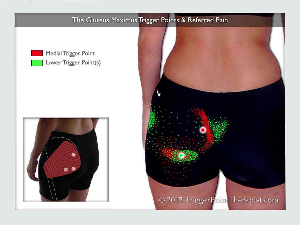A diagram showing the gluteus maximus trigger points and referred pain