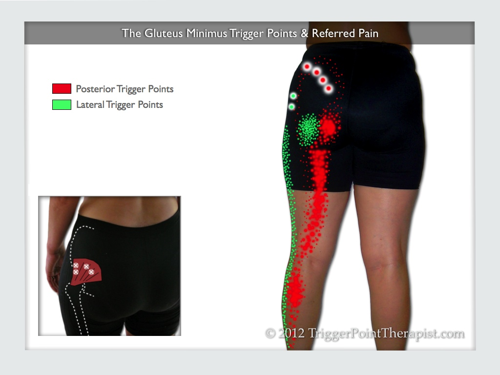 Diagram of the gluteus minimus trigger points and referred pain