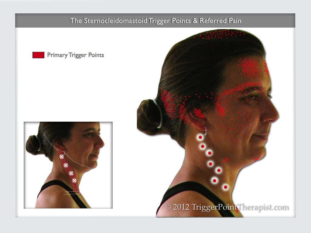 A diagram of the sternocleidomastoid trigger points and their referred pain pattern