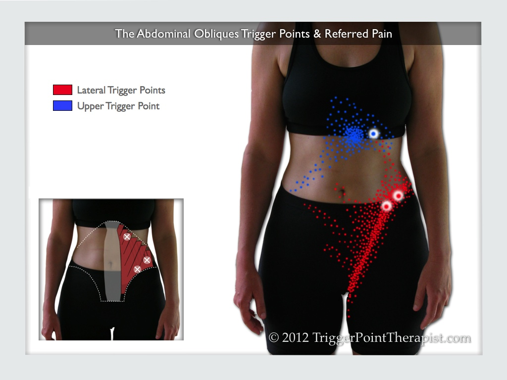 A diagram of the abdominal oblique trigger points and their referred pain