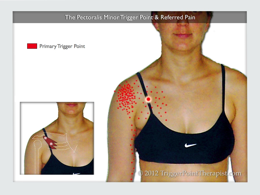 Pec Minor Trigger Point