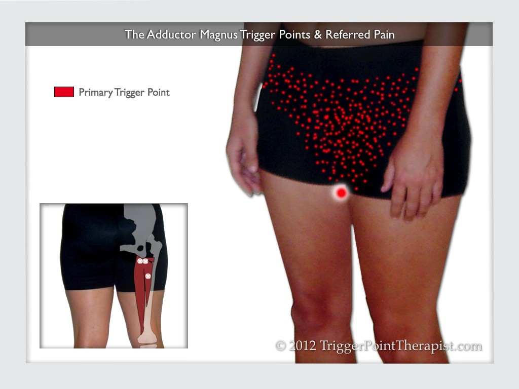 The Adductor Magnus Trigger Points