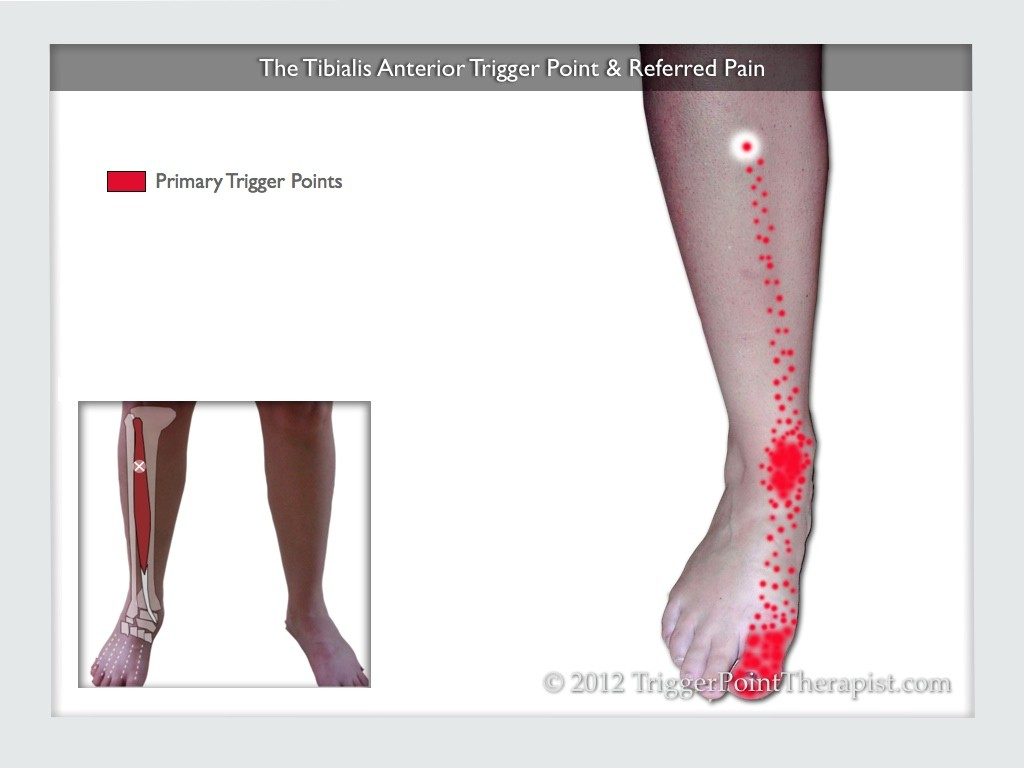 Tibilais Anterior Trigger Point: The Foot Drop Trigger Point ...