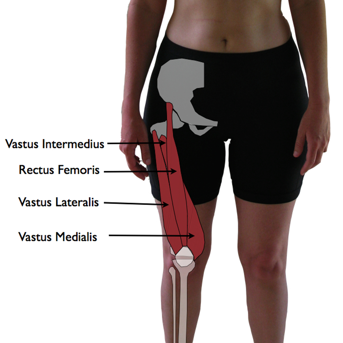 how to find vastus lateralis injection site