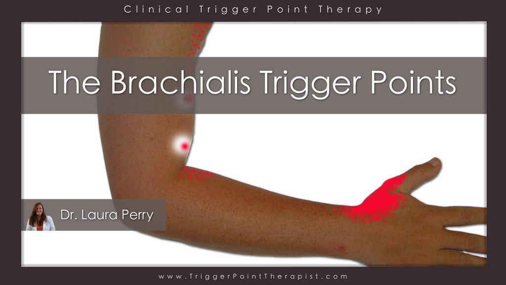 brachialis_trigger_points