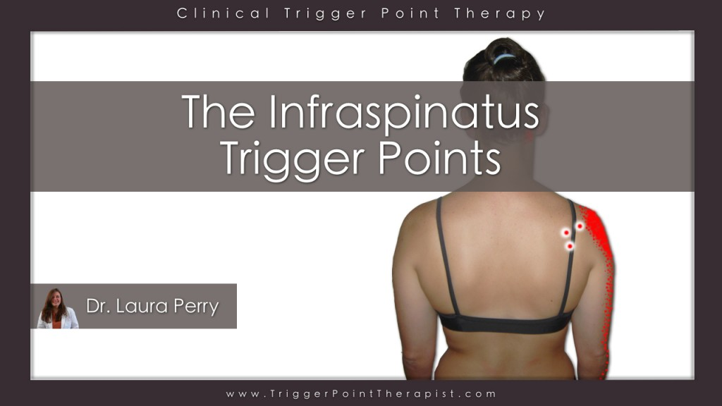 Infraspinatus Trigger Points Video