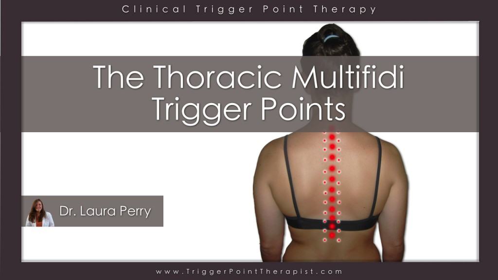 Thoracic Multifidus Trigger Point Video