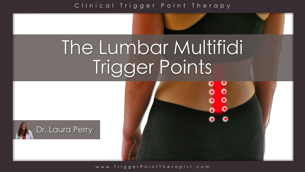 Lumbar Multifidus Trigger Points Video