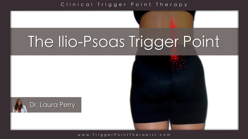 Psoas Trigger Point Video