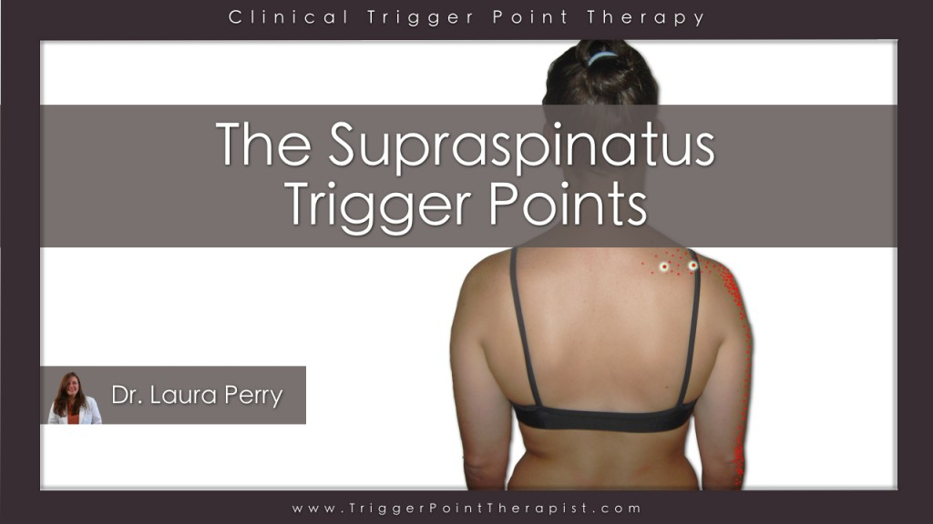 Supraspinatus Trigger Points Video