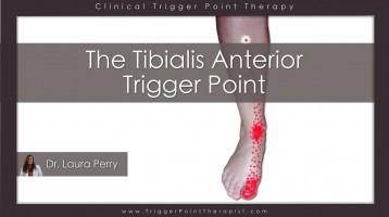 Tibialis Anterior Trigger Point: The Foot Drop Trigger Point