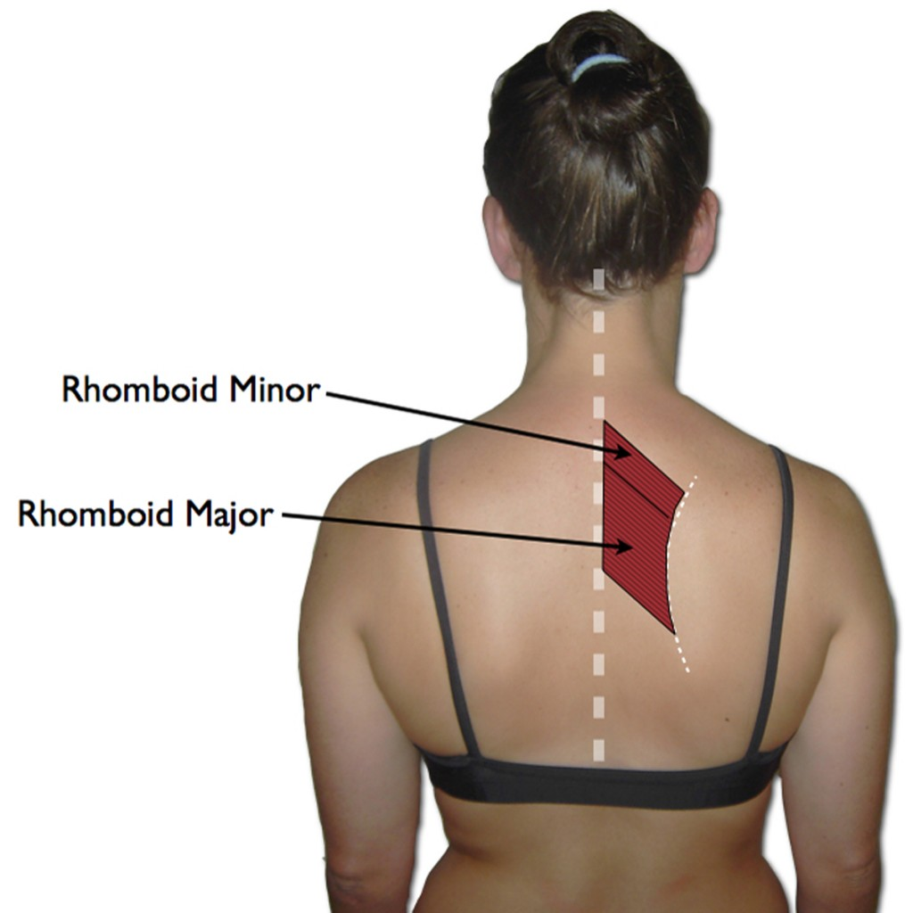 The Rhomboid Muscles