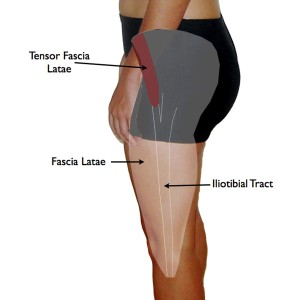 Tensor Fascia Lata Trigger Point in IT Band and Hip Pain Complaints ...